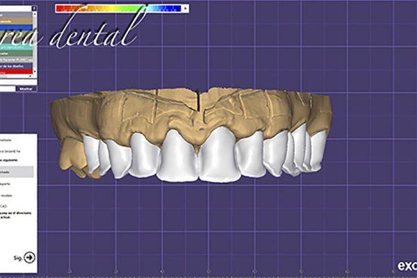 CAD-CAM-LABORATORIO-DENTAL-pte-fija-estratif-10