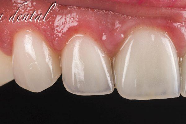 Cosmetica_denta-_01