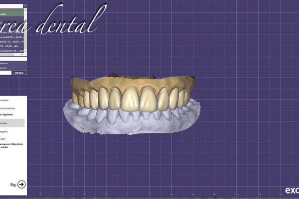 Diseno_sonrisa_digital_05