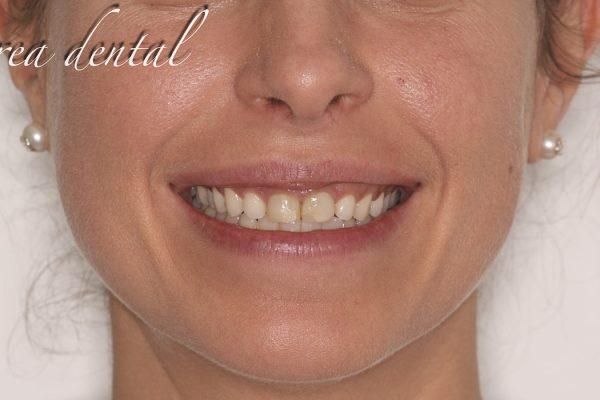 Icosmetica_dental_04