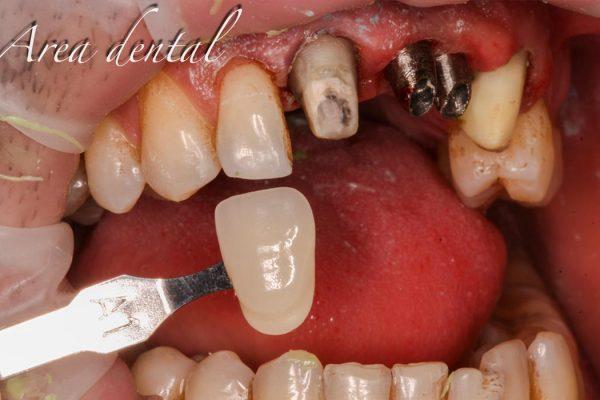 Corona Sobre Implantes