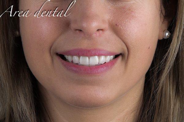cosmetica_dental_02