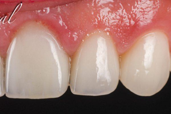 cosmetica_dental_05
