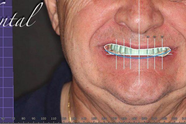 Diseño líneas Dental