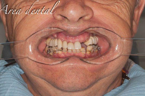 flujo-dental-3