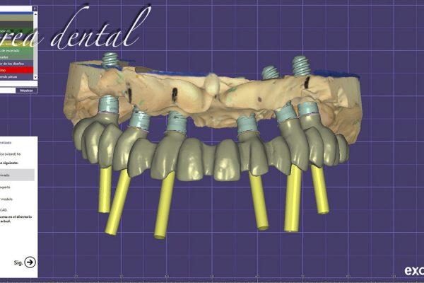 foto-rehabilitacion-CAD-CAM-09
