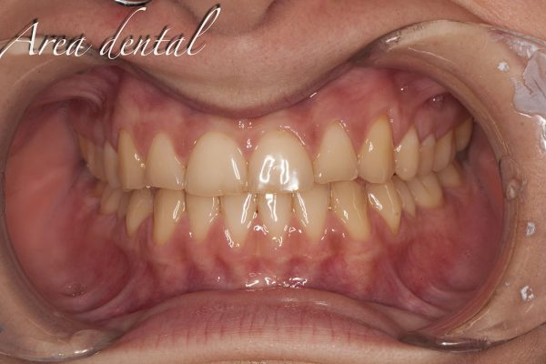 cosmética dental carillas feldespáticas