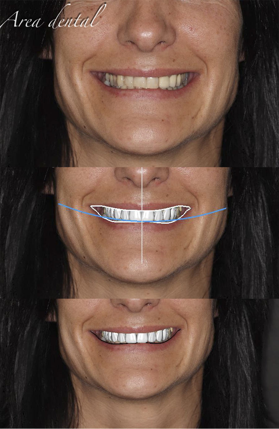 Diseño sonrisa digital