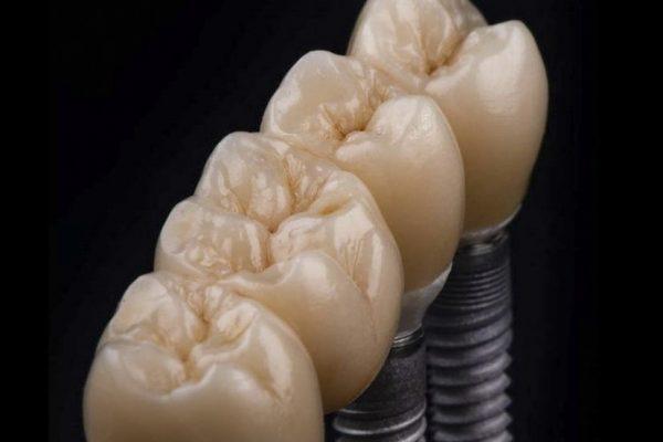 protesis-sobre_implantes_IMG_0101