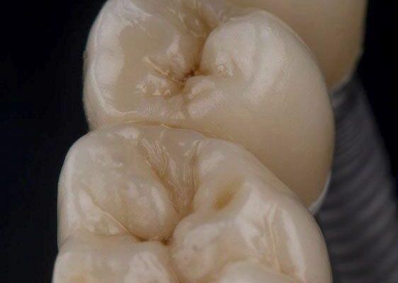 protesis_sobre_implantes_IMG_0102