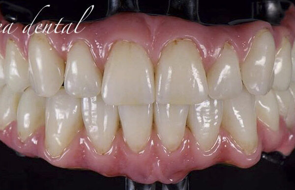 protesis_sobre_implantes_IMG_1860